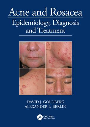 Acne and Rosacea: Epidemiology, Diagnosis and Treatment, 1st Edition (Hardback) book cover