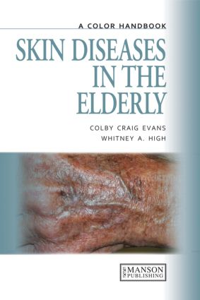 Skin Diseases in the Elderly: A Color Handbook book cover