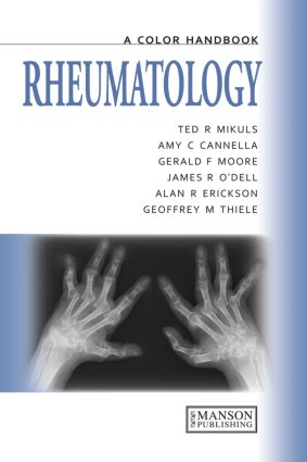 Rheumatology: A Color Handbook, 1st Edition (Paperback) book cover