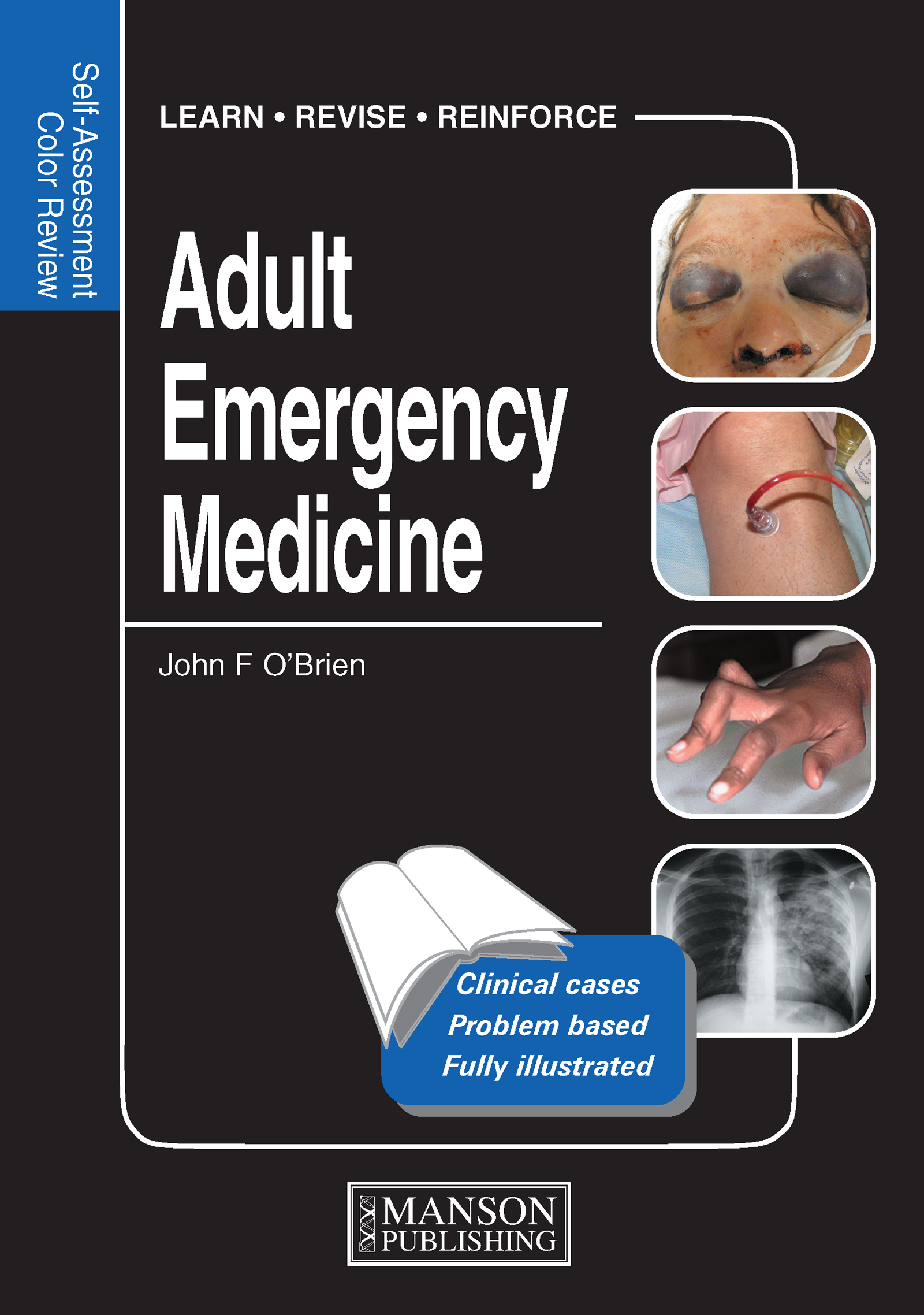 Adult Emergency Medicine: Self-Assessment Color Review, 1st Edition (Paperback) book cover