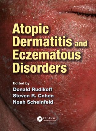 Atopic Dermatitis and Eczematous Disorders: 1st Edition (Hardback) book cover