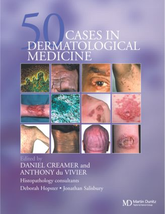 Fifty Dermatological Cases: 1st Edition (Hardback) book cover