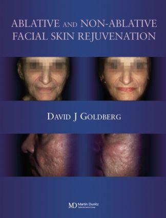 Ablative and Non-ablative Facial Skin Rejuvenation: 1st Edition (Hardback) book cover