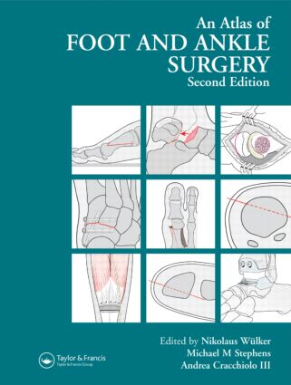Atlas Foot and Ankle Surgery: 2nd Edition (Hardback) book cover