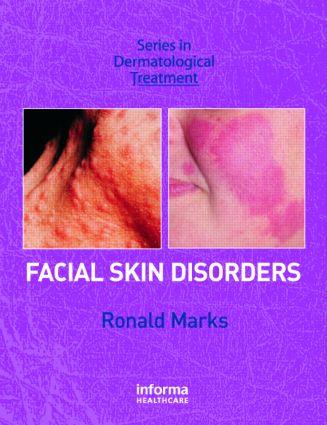 Facial Skin Disorders: 1st Edition (Hardback) book cover
