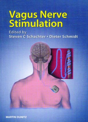 Vagus Nerve Stimulation: 2nd Edition (Paperback) book cover