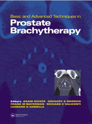 Basic and Advanced Techniques in Prostate Brachytherapy: 1st Edition (Hardback) book cover