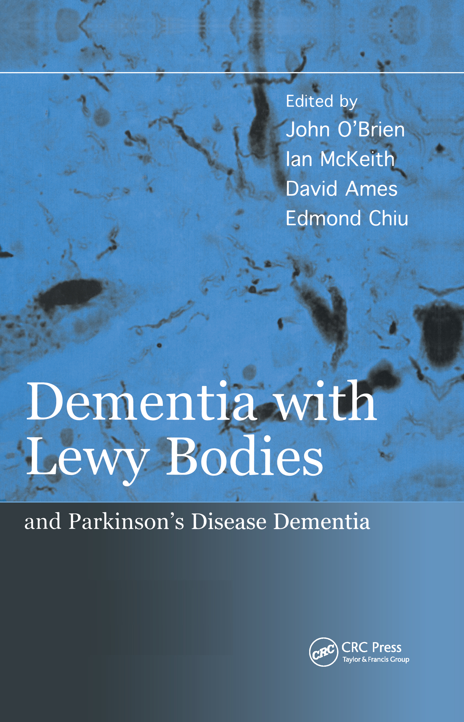 Dementia with Lewy Bodies: and Parkinson's Disease Dementia, 1st Edition (Hardback) book cover