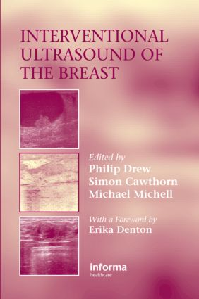 Interventional Ultrasound of the Breast: 1st Edition (Hardback) book cover