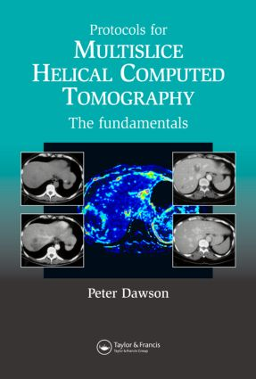 Protocols for Multislice Helical Computed Tomography: The Fundamentals, 1st Edition (Hardback) book cover