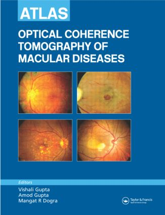 Atlas of Optical Coherence Tomography of Macular Diseases: 1st Edition (Hardback) book cover
