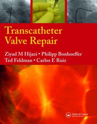Transcatheter Valve Repair: 1st Edition (Hardback) book cover