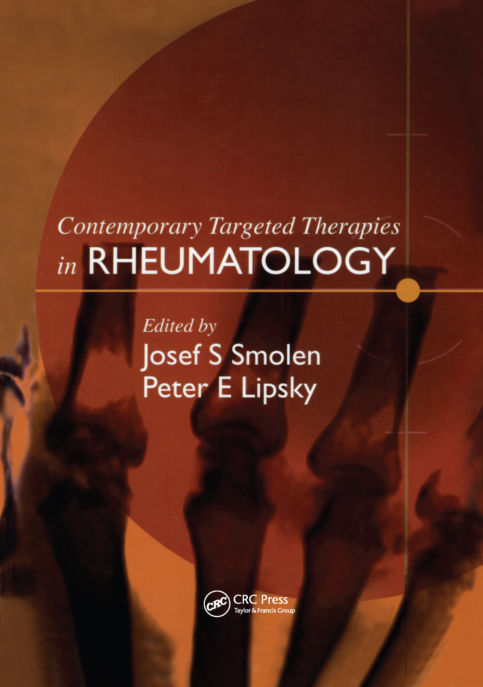 Contemporary Targeted Therapies in Rheumatology: 1st Edition (Hardback) book cover