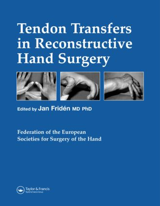 Tendon Transfers in Reconstructive Hand Surgery: 1st Edition