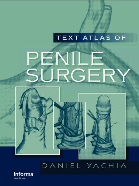 Text Atlas of Penile Surgery: 1st Edition (Hardback) book cover