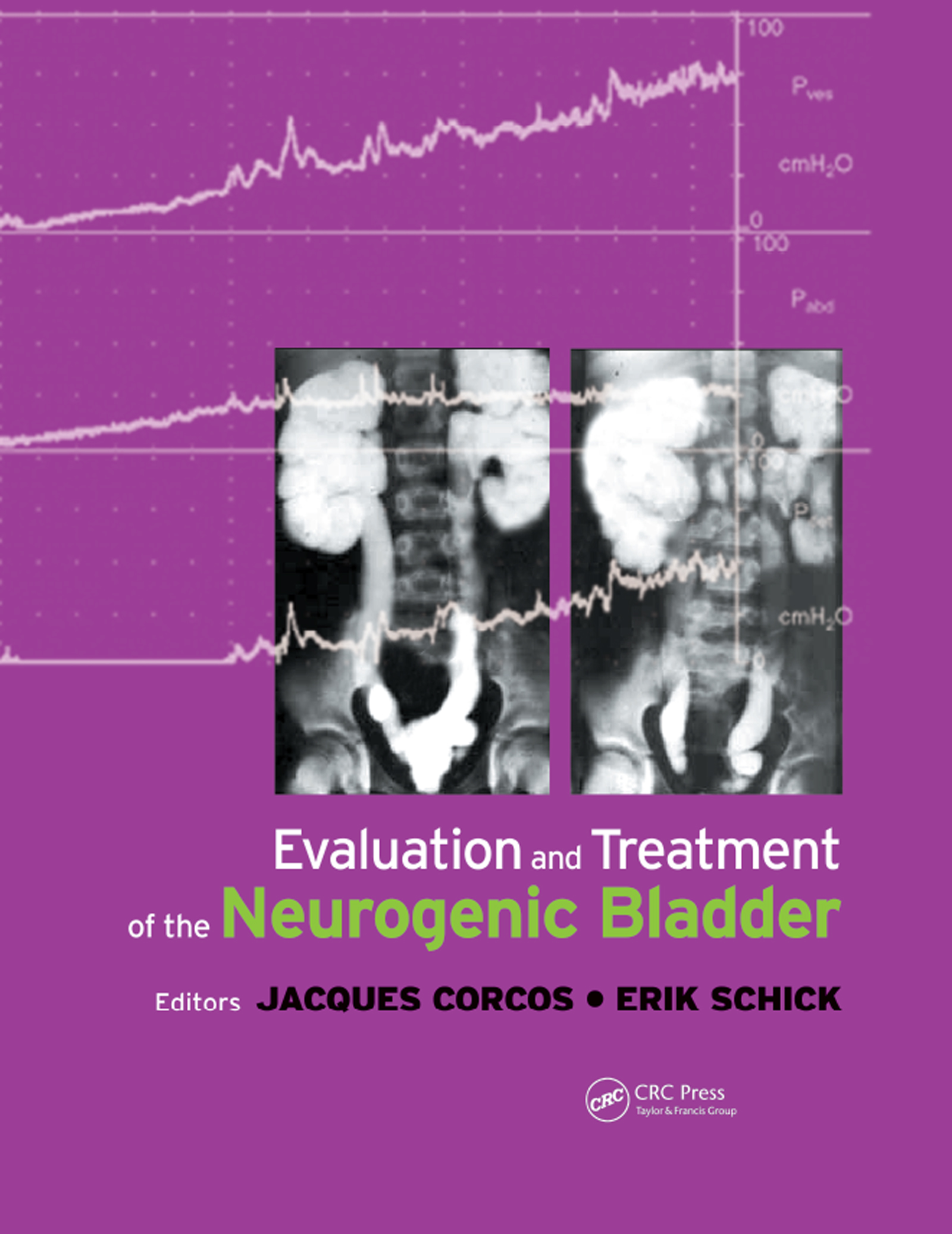 Evaluation and Treatment of the Neurogenic Bladder: 1st Edition (Paperback) book cover