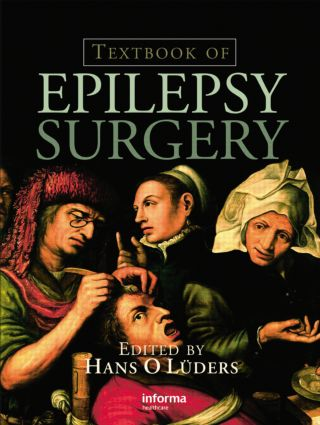 Textbook of Epilepsy Surgery: 1st Edition (Hardback) book cover