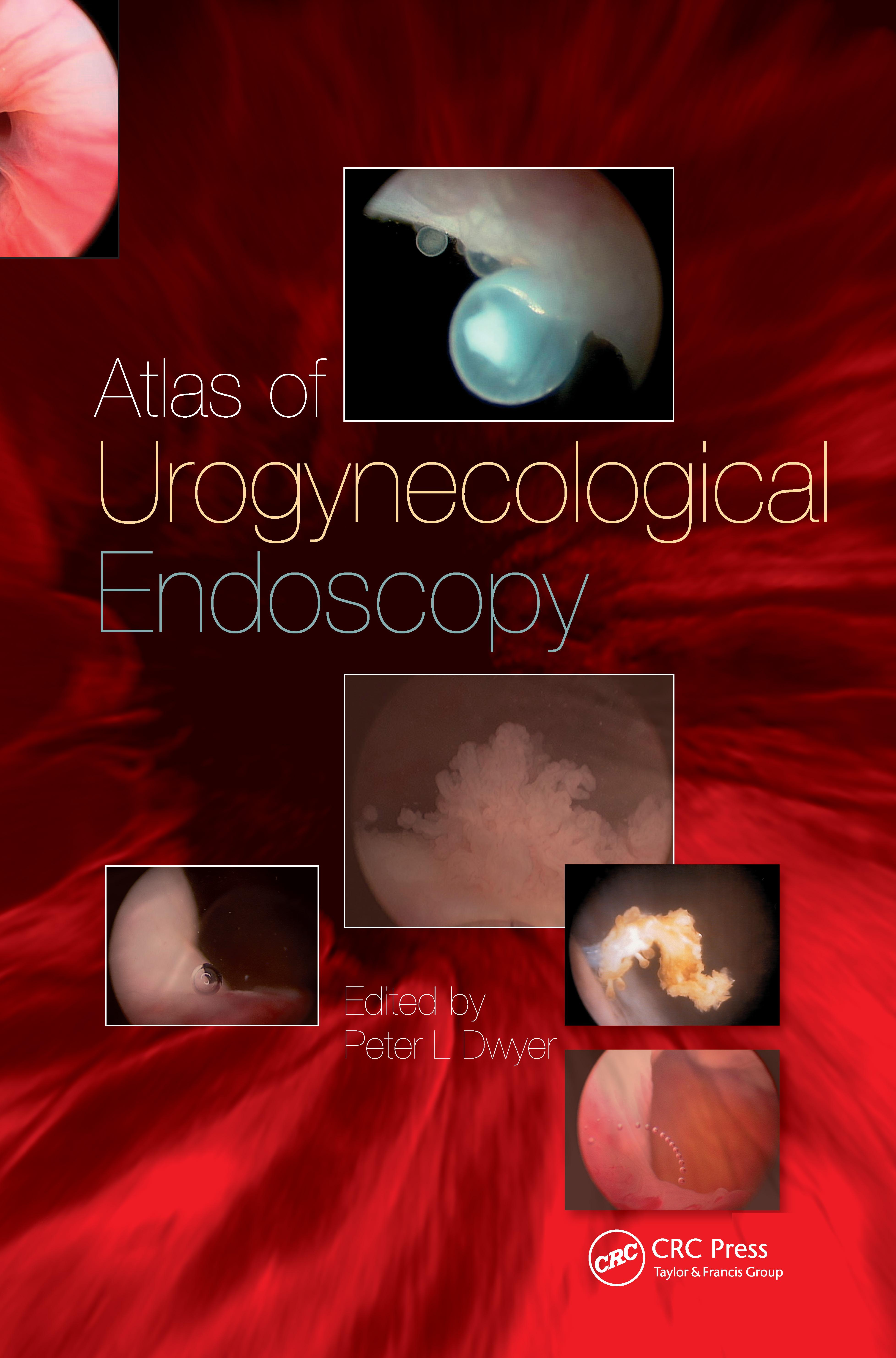 Handbook of Urologic Cryoablation: 1st Edition (Hardback) book cover