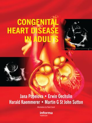 Congenital Heart Disease in Adults (Hardback) book cover