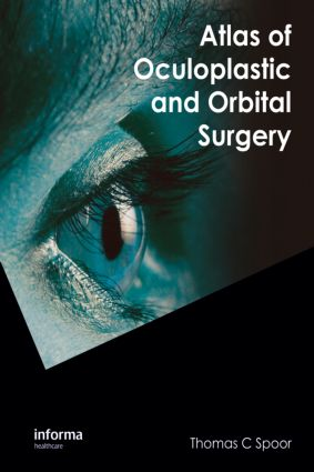 Atlas of Oculoplastic and Orbital Surgery: 1st Edition (Hardback) book cover