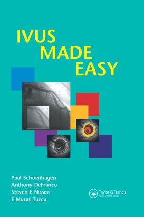 IVUS Made Easy: 1st Edition (Paperback) book cover