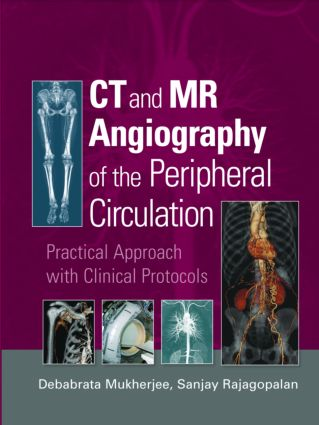 CT and MR Angiography of the Peripheral Circulation: Practical Approach with Clinical Protocols, 1st Edition (Hardback) book cover