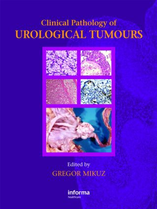 Clinical Pathology of Urological Tumours: 1st Edition (Hardback) book cover