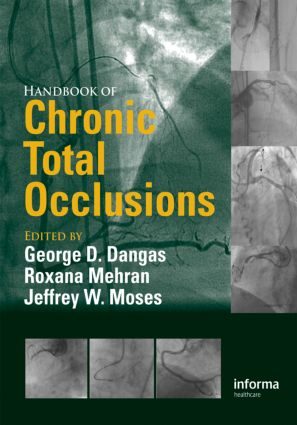 Handbook of Chronic Total Occlusions: 1st Edition (Hardback) book cover
