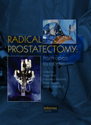 Radical Prostatectomy: From Open to Robotic, 1st Edition (Hardback) book cover