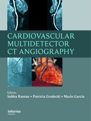 Cardiovascular Multidetector CT Angiography: 1st Edition (Hardback) book cover