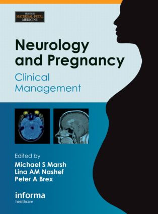 Neurology and Pregnancy: Clinical Management (Hardback) book cover