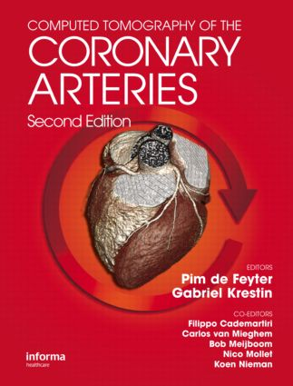 Computed Tomography of the Coronary Arteries: 2nd Edition (Hardback) book cover