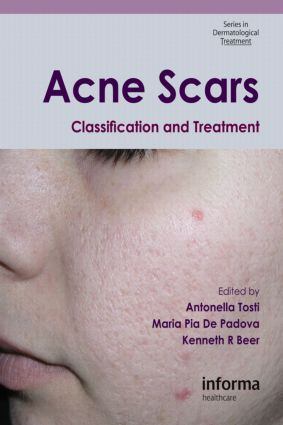 Acne Scars: Classification and Treatment, 1st Edition (Paperback) book cover