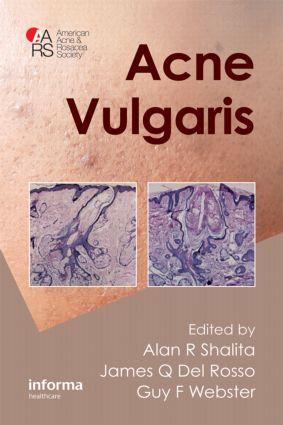 Acne Vulgaris: 1st Edition (Hardback) book cover