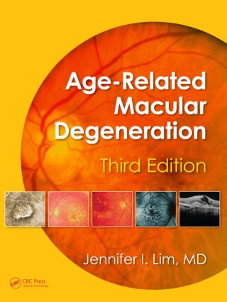 Age-Related Macular Degeneration, Third Edition: 3rd Edition (Hardback) book cover
