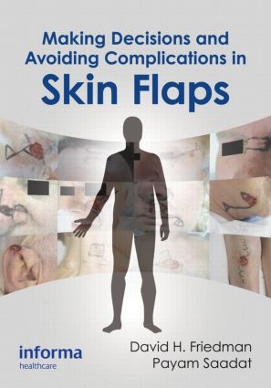 Making Decisions and Avoiding Complications in Skin Flaps: 1st Edition (Hardback) book cover