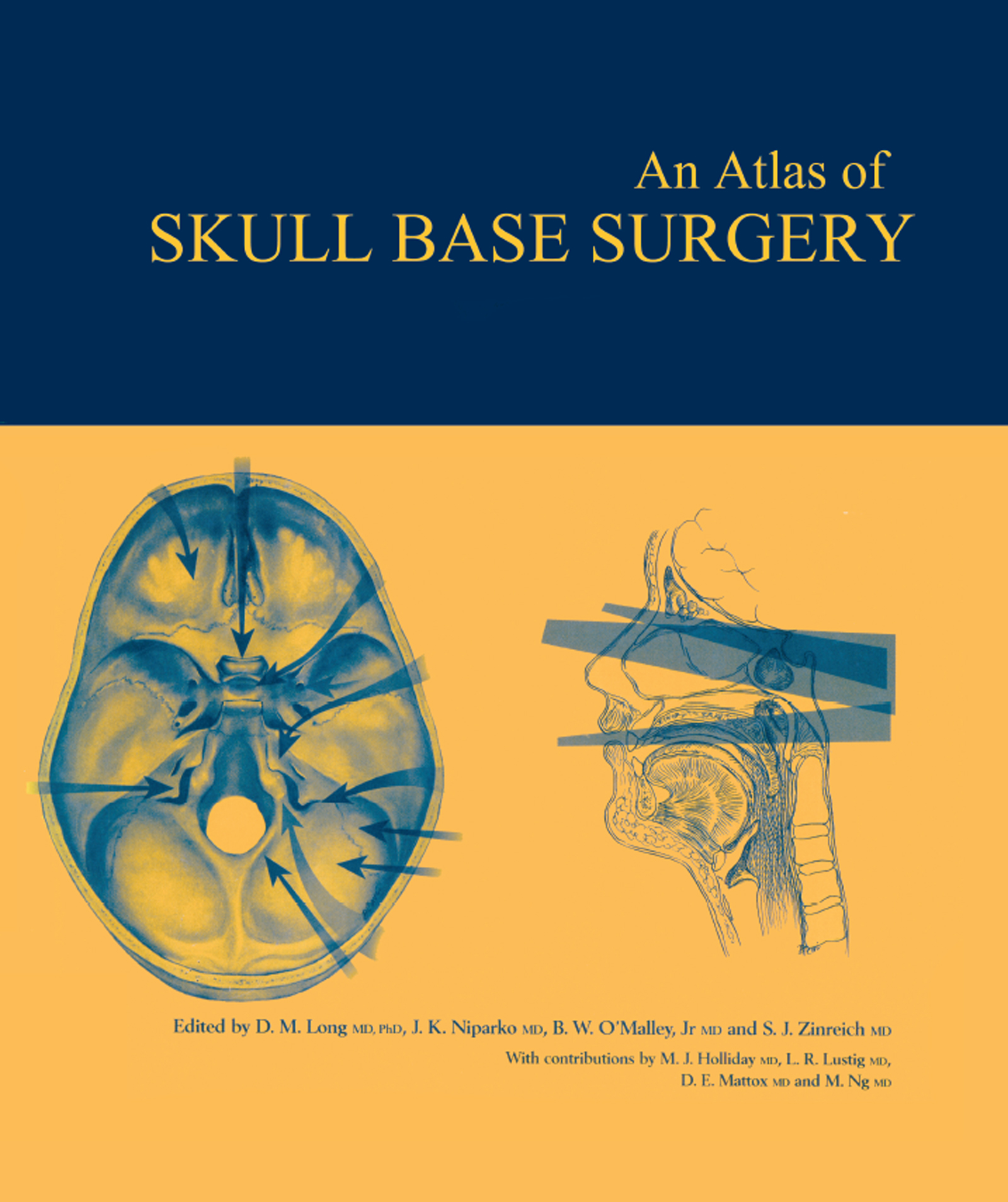 Atlas of Skull Base Surgery: 1st Edition (Hardback) book cover