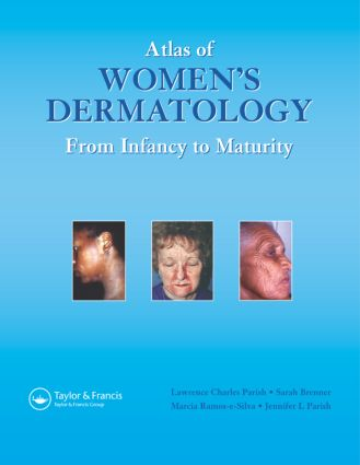 Atlas of Women's Dermatology: From Infancy to Maturity, 1st Edition (Hardback) book cover
