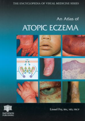 An Atlas of Atopic Eczema: 1st Edition (Hardback) book cover
