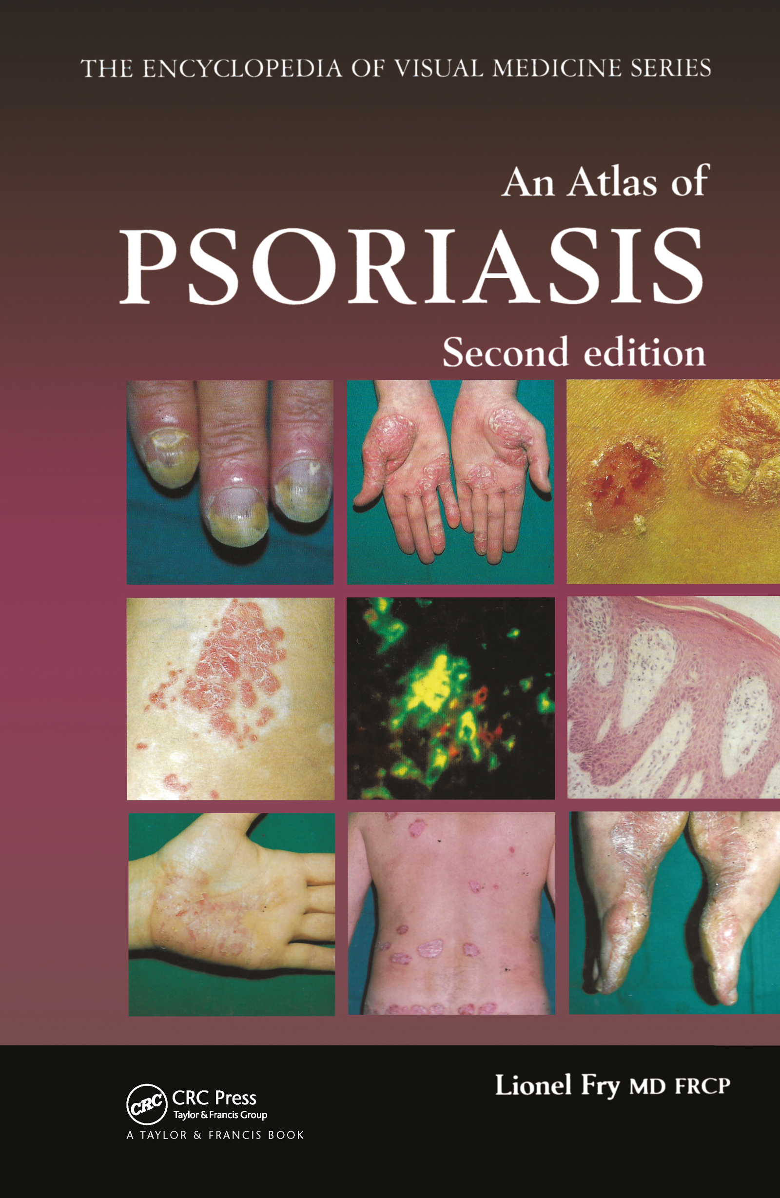 An Atlas of Psoriasis, Second Edition: 2nd Edition (Hardback) book cover