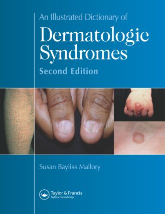 An Illustrated Dictionary of Dermatologic Syndromes: 2nd Edition (Hardback) book cover