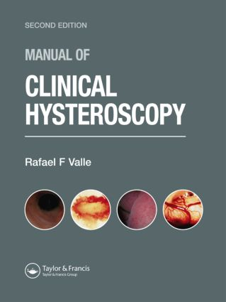 Manual of Clinical Hysteroscopy, Second Edition: 2nd Edition (Hardback) book cover