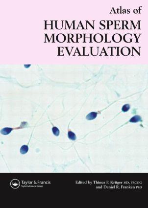 Atlas of Human Sperm Morphology Evaluation: 1st Edition (Hardback) book cover