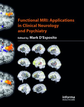 Functional MRI: Applications in Clinical Neurology and Psychiatry book cover