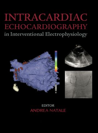 Intracardiac Echocardiography in Interventional Electrophysiology: Advanced Management of Atrial Fibrillation and Ventricular Tachycardia, 1st Edition (Hardback) book cover