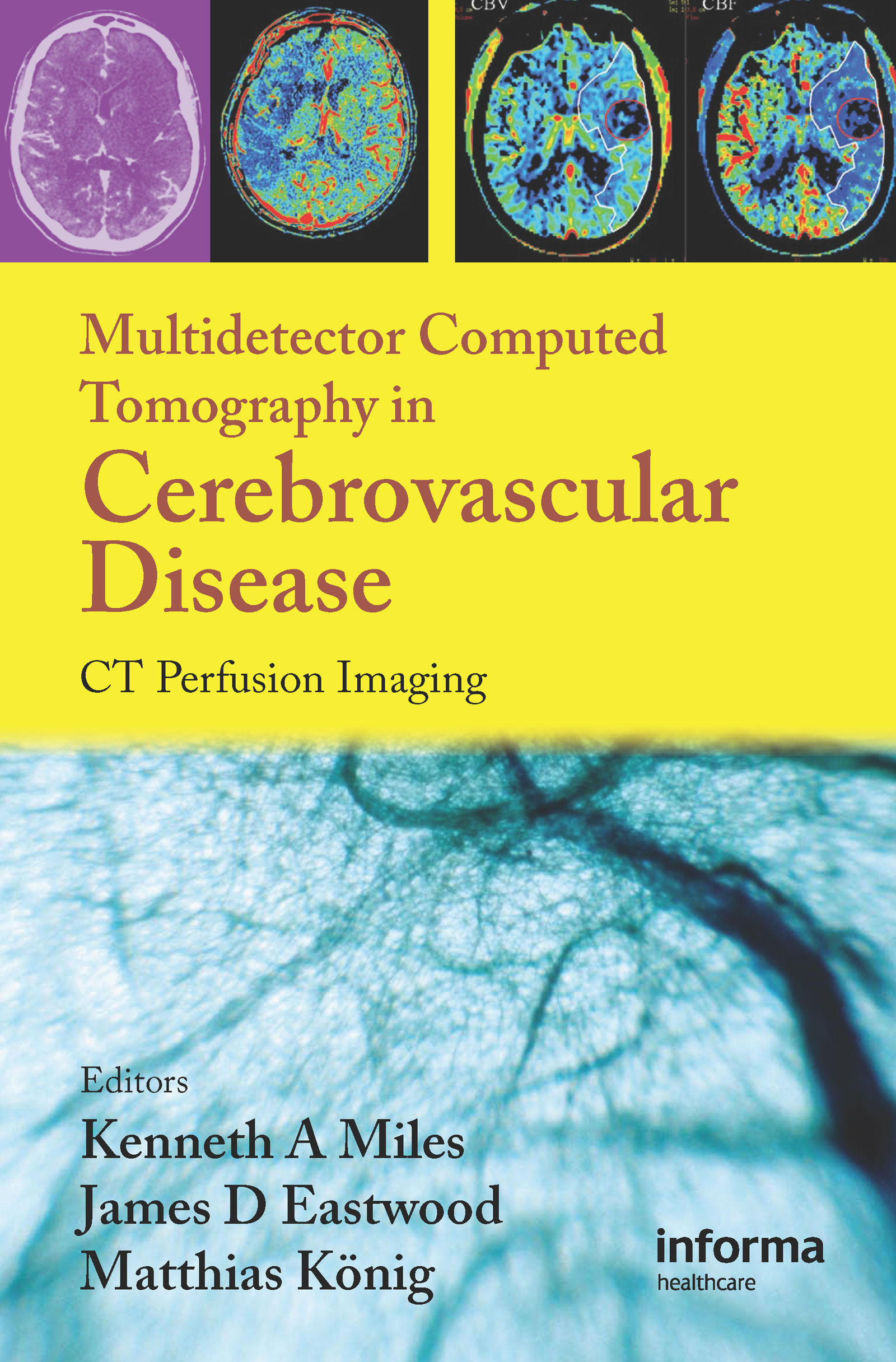 Multidetector Computed Tomography in Cerebrovascular Disease: CT Perfusion Imaging, 1st Edition (Hardback) book cover