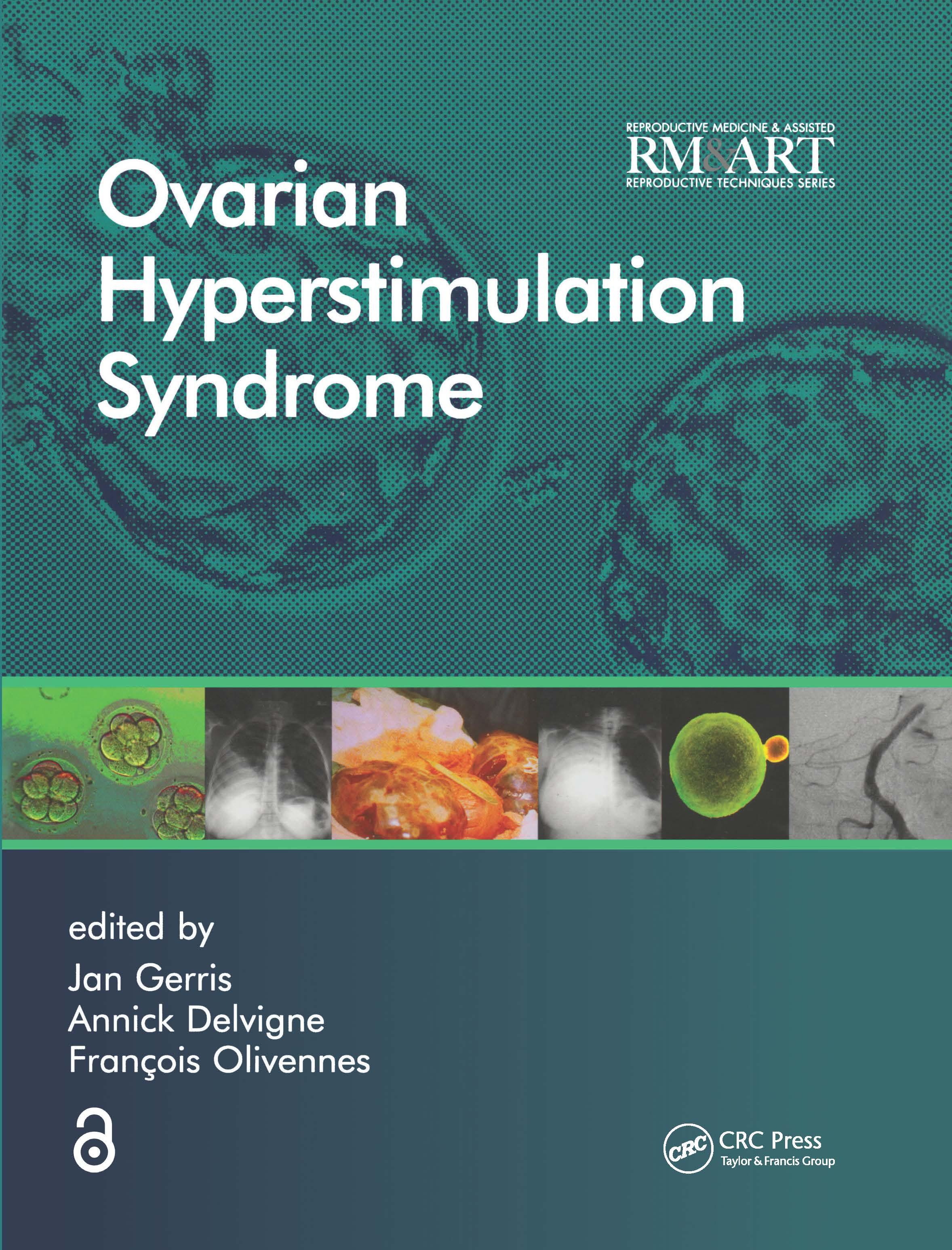 Ovarian Hyperstimulation Syndrome: 1st Edition (Hardback) book cover