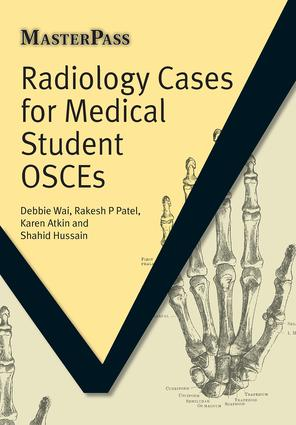 Radiology Cases for Medical Student OSCEs: 1st Edition (Paperback) book cover