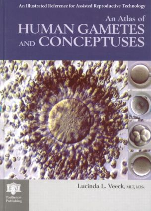 An Atlas of Human Gametes and Conceptuses: An Illustrated Reference for Assisted Reproductive Technology, 1st Edition (Hardback) book cover