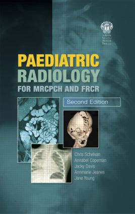 Paediatric Radiology for MRCPCH and FRCR, Second Edition: 2nd Edition (Paperback) book cover